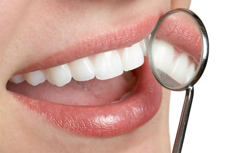 Happy Tooth Dental Dental Offer