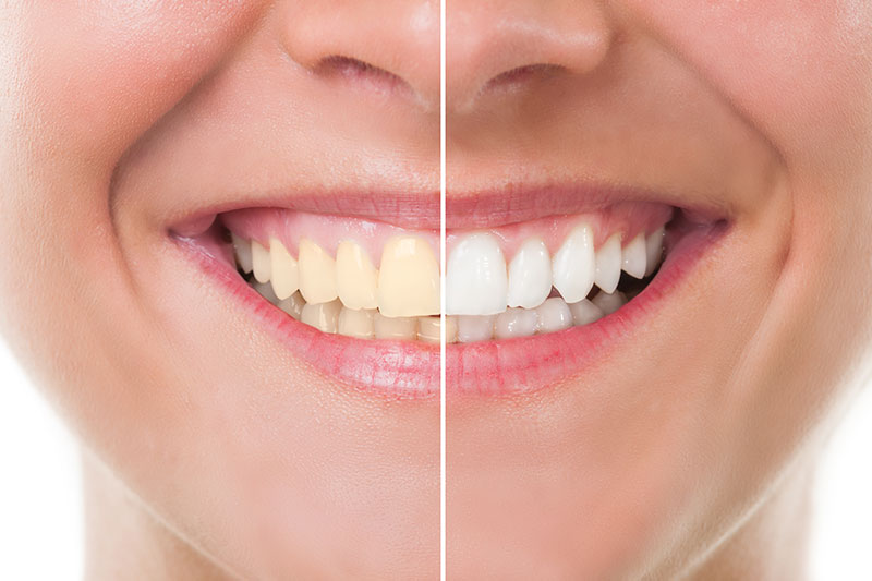 Teeth Whitening - Happy Tooth Dental, Woodland Hills Dentist