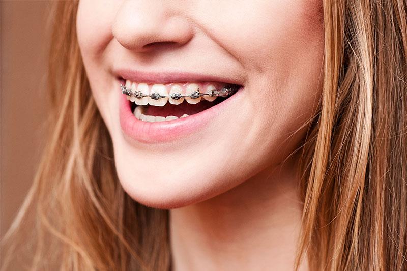 Orthodontics - Happy Tooth Dental, Woodland Hills Dentist