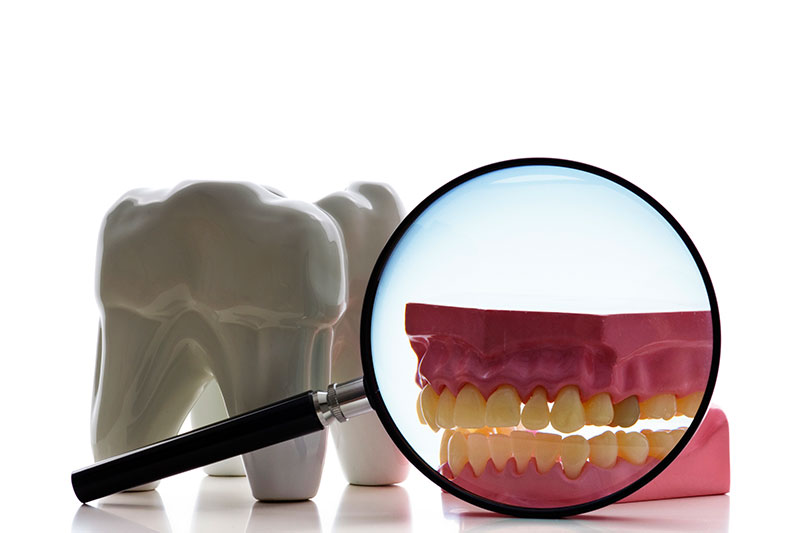 Root Canal - Happy Tooth Dental, Woodland Hills Dentist